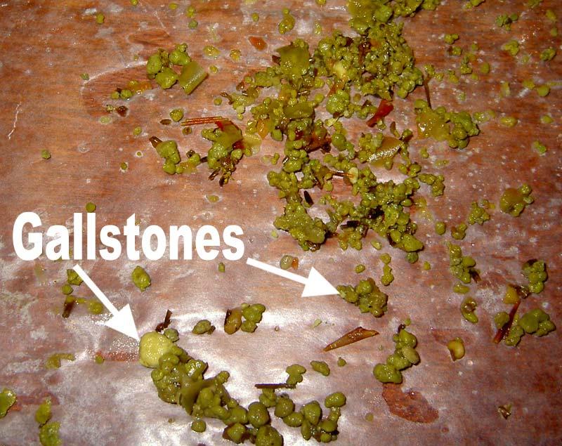 Cholelithiasis (Gall Stone)