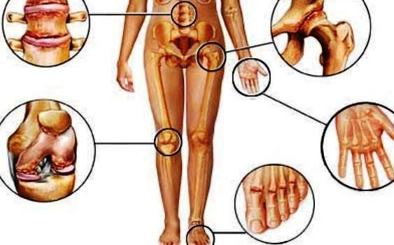 Home Remedies of Arthritis, Backache/Back Pain and Gout